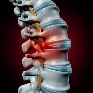 Disc Degeneration and Herniation