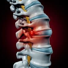 Spinal Stenosis Hot Springs AR